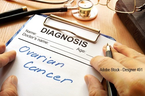 Assay for Diagnosis of Ovarian Cancer
